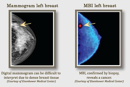 mamogramleftbreast
